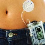 Алгоритмы решают проблемы диабетиков